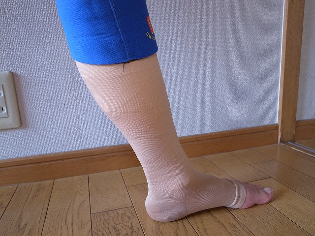 下肢 静脈 瘤 術 後